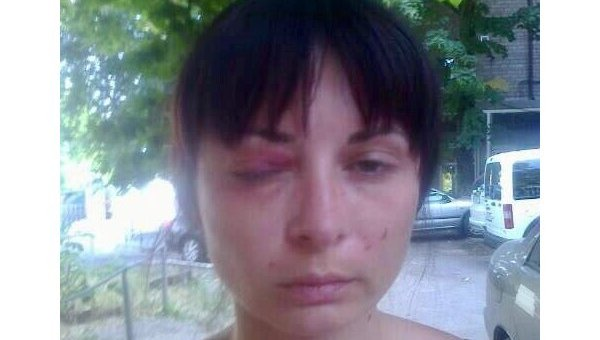 Пытки на Украине: куда смотрит ОБСЕ