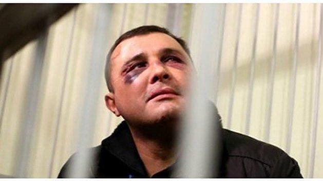 Шепелева пытали в СИЗО, он объявил голодовку
